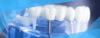 Implantes dentales en Sabadell