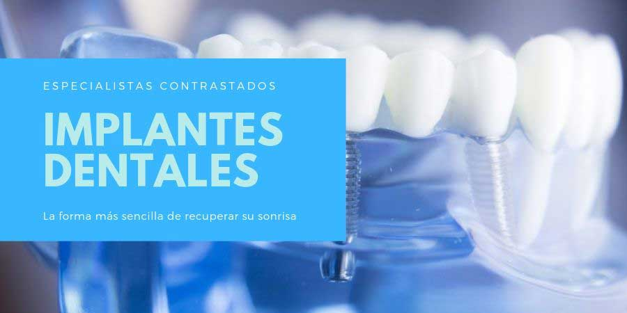 Especialistas en implantes dentales en Sabadell