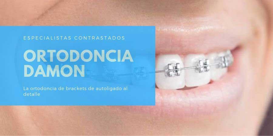 Ortodoncia Damon en Sabadell