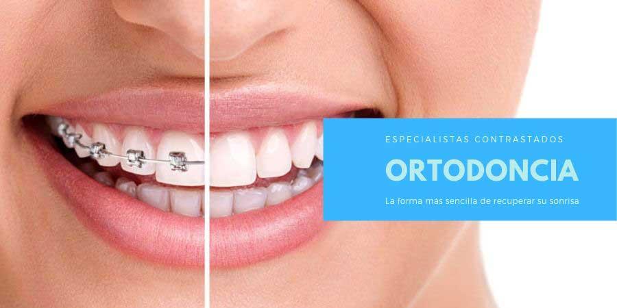 Ortodoncia en Sabadell, Ortodoncista con experiencia.