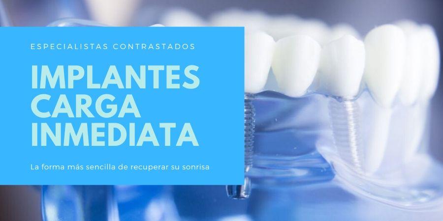 Implantes dentales de carga inmediata en Sabadell